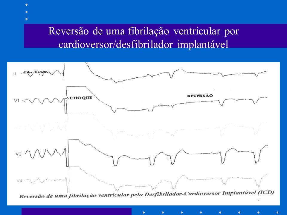 Reversão de uma fibrilação ventricular por cardioversor/desfibrilador implantável