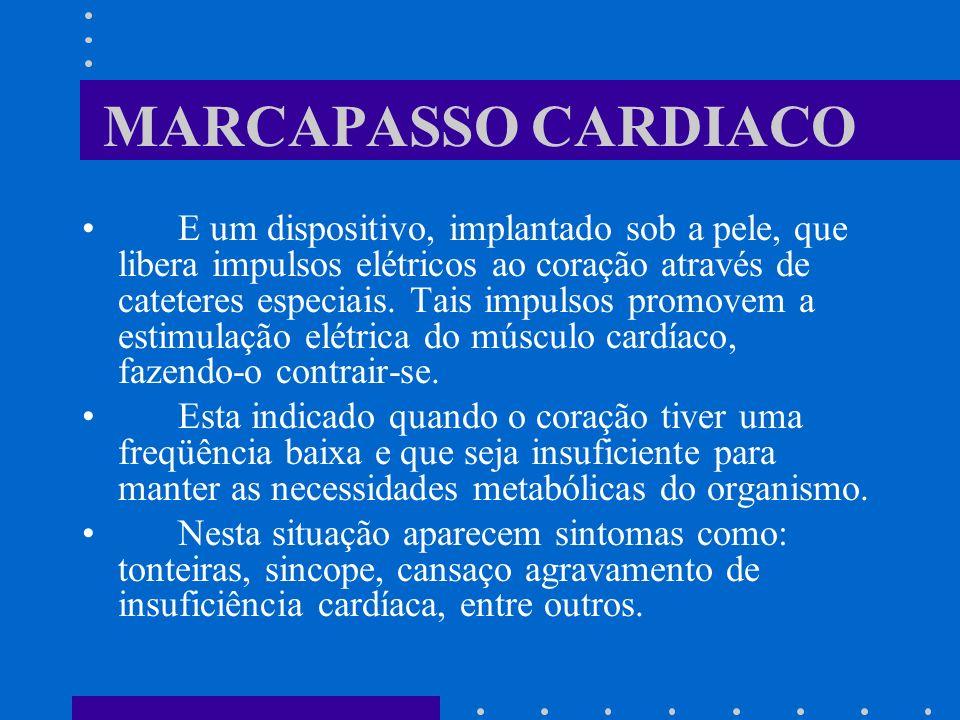 MARCAPASSO CARDIACO E um dispositivo, implantado sob a pele, que libera impulsos elétricos ao coração através de cateteres especiais. Tais impulsos pr