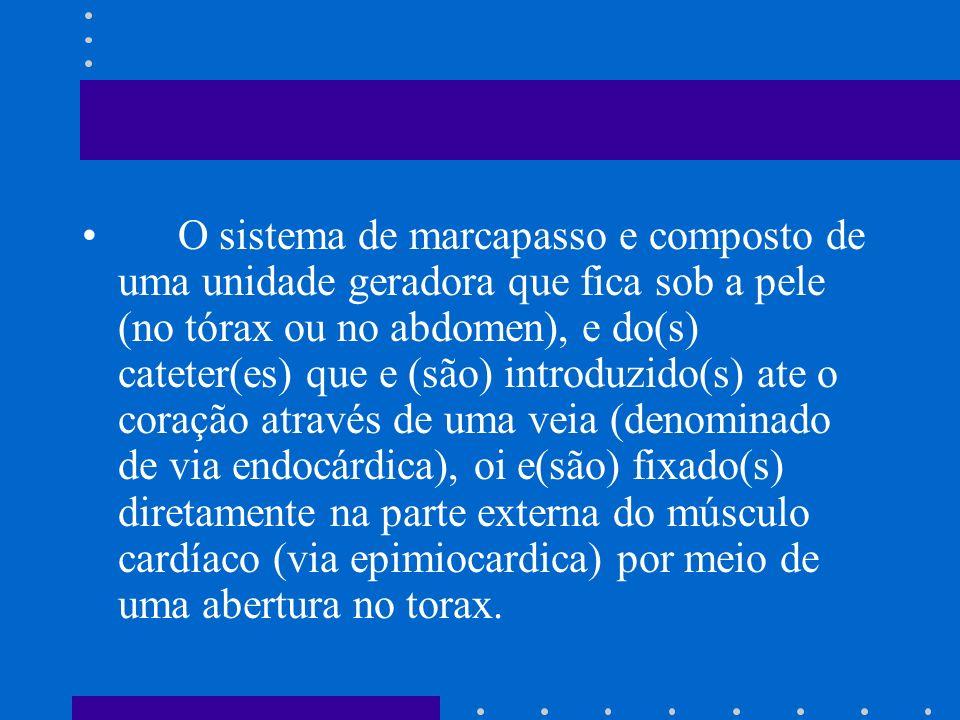 O sistema de marcapasso e composto de uma unidade geradora que fica sob a pele (no tórax ou no abdomen), e do(s) cateter(es) que e (são) introduzido(s