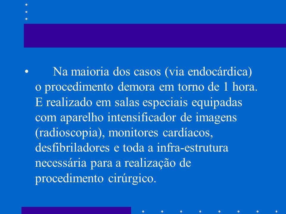 Na maioria dos casos (via endocárdica) o procedimento demora em torno de 1 hora. E realizado em salas especiais equipadas com aparelho intensificador