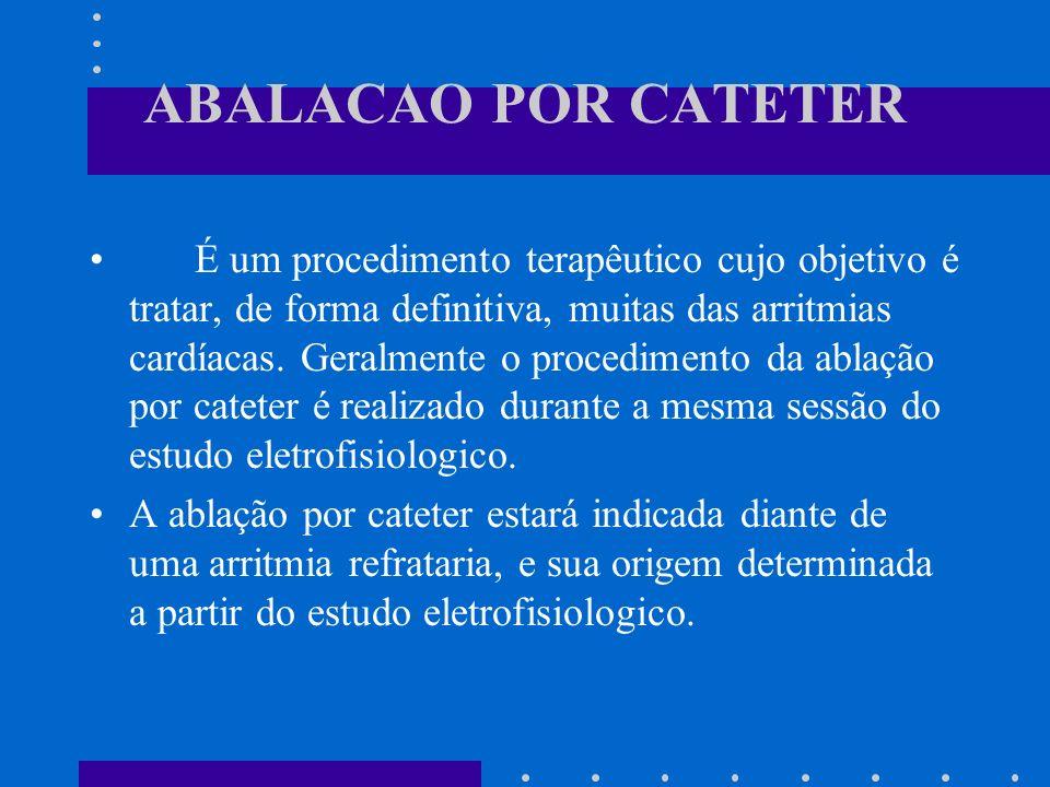 ABALACAO POR CATETER É um procedimento terapêutico cujo objetivo é tratar, de forma definitiva, muitas das arritmias cardíacas. Geralmente o procedime