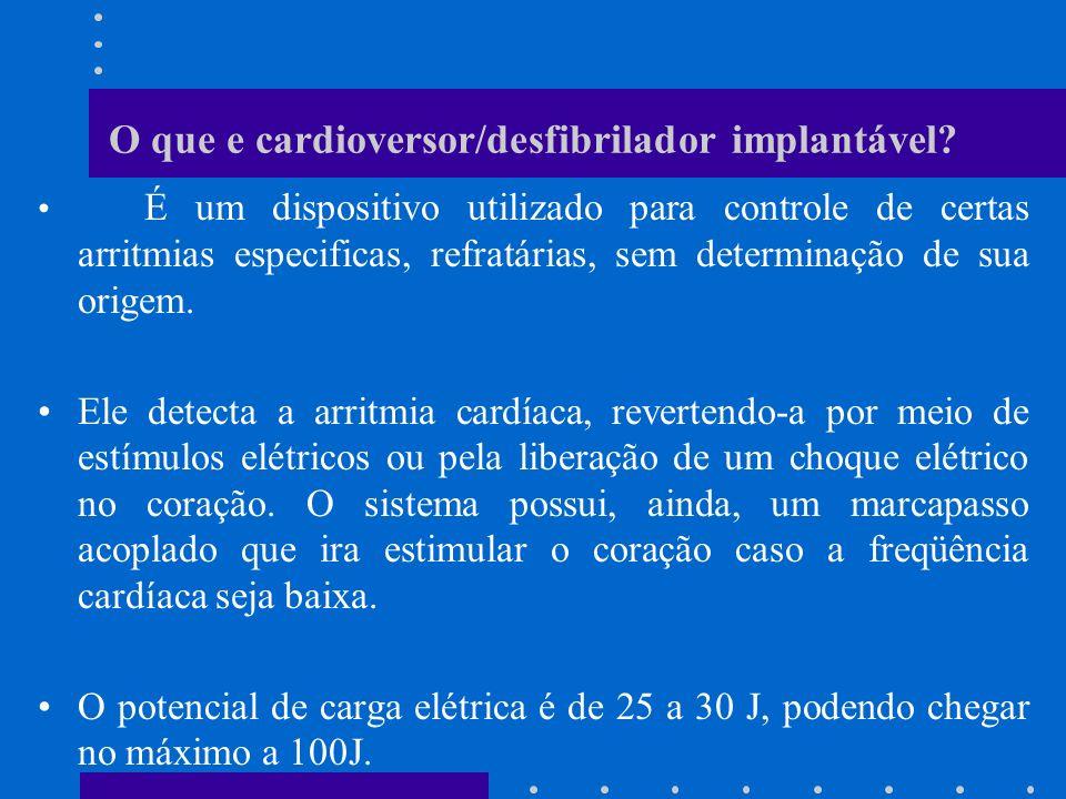 O que e cardioversor/desfibrilador implantável? É um dispositivo utilizado para controle de certas arritmias especificas, refratárias, sem determinaçã
