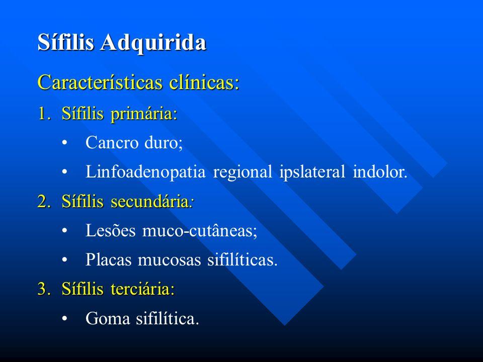 Sífilis Adquirida Características clínicas: 1.Sífilis primária: Cancro duro; Linfoadenopatia regional ipslateral indolor. 2.Sífilis secundária: Lesões