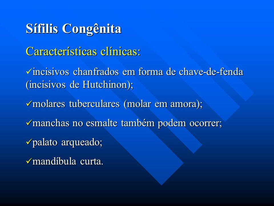 Sífilis Congênita Características clínicas: incisivos chanfrados em forma de chave-de-fenda (incisivos de Hutchinon); molares tuberculares (molar em a