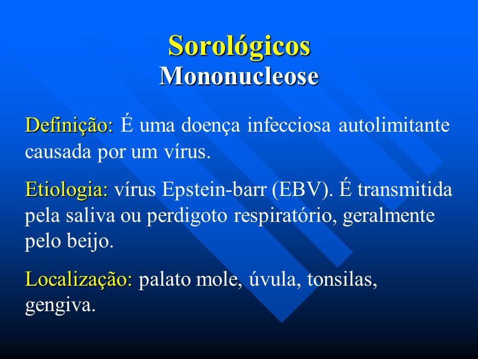 Sorológicos Definição: Definição: É uma doença infecciosa autolimitante causada por um vírus. Etiologia: Etiologia: vírus Epstein-barr (EBV). É transm