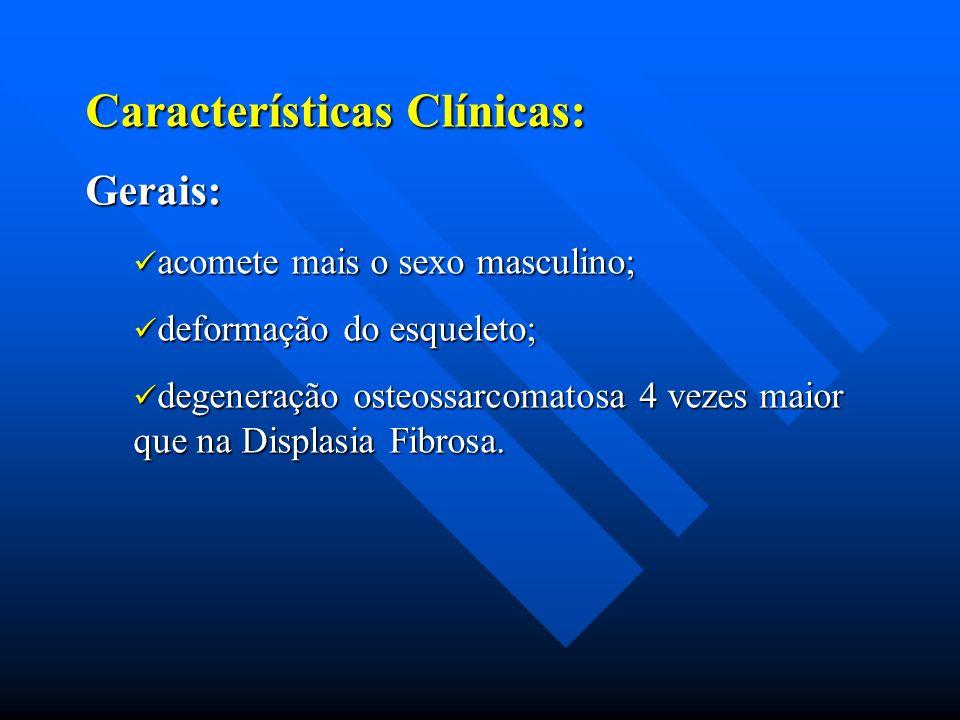 Características Clínicas: Gerais: acomete mais o sexo masculino; acomete mais o sexo masculino; deformação do esqueleto; deformação do esqueleto; dege