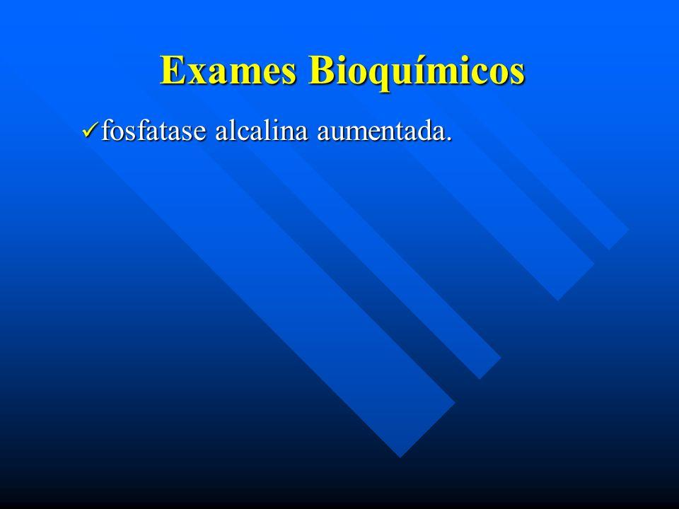 Exames Bioquímicos fosfatase alcalina aumentada. fosfatase alcalina aumentada.