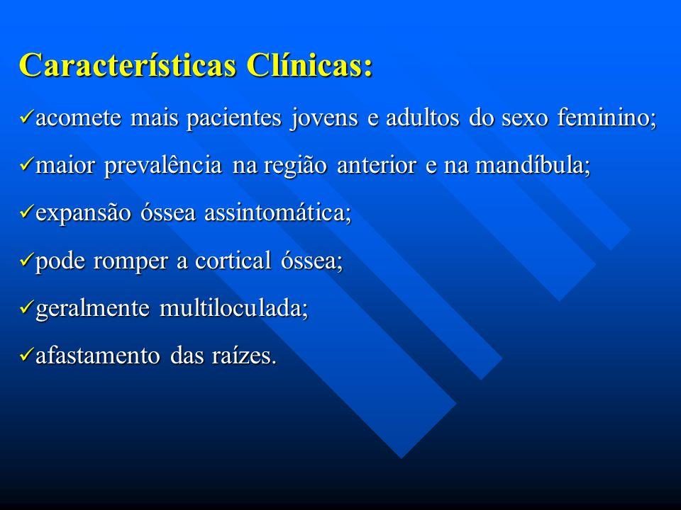 Características Clínicas: acomete mais pacientes jovens e adultos do sexo feminino; acomete mais pacientes jovens e adultos do sexo feminino; maior pr