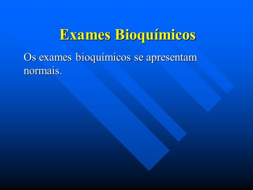 Exames Bioquímicos Os exames bioquímicos se apresentam normais.