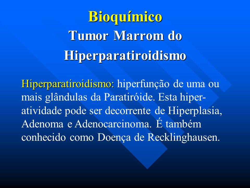 Bioquímico Tumor Marrom do Hiperparatiroidismo Hiperparatiroidismo: Hiperparatiroidismo: hiperfunção de uma ou mais glândulas da Paratiróide. Esta hip