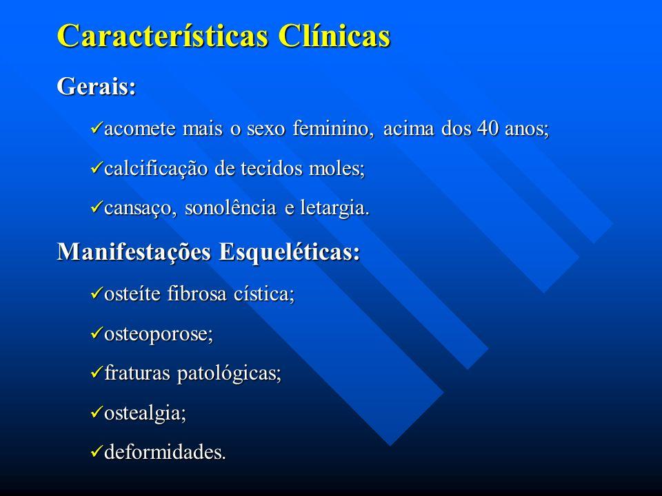 Características Clínicas Gerais: acomete mais o sexo feminino, acima dos 40 anos; acomete mais o sexo feminino, acima dos 40 anos; calcificação de tec