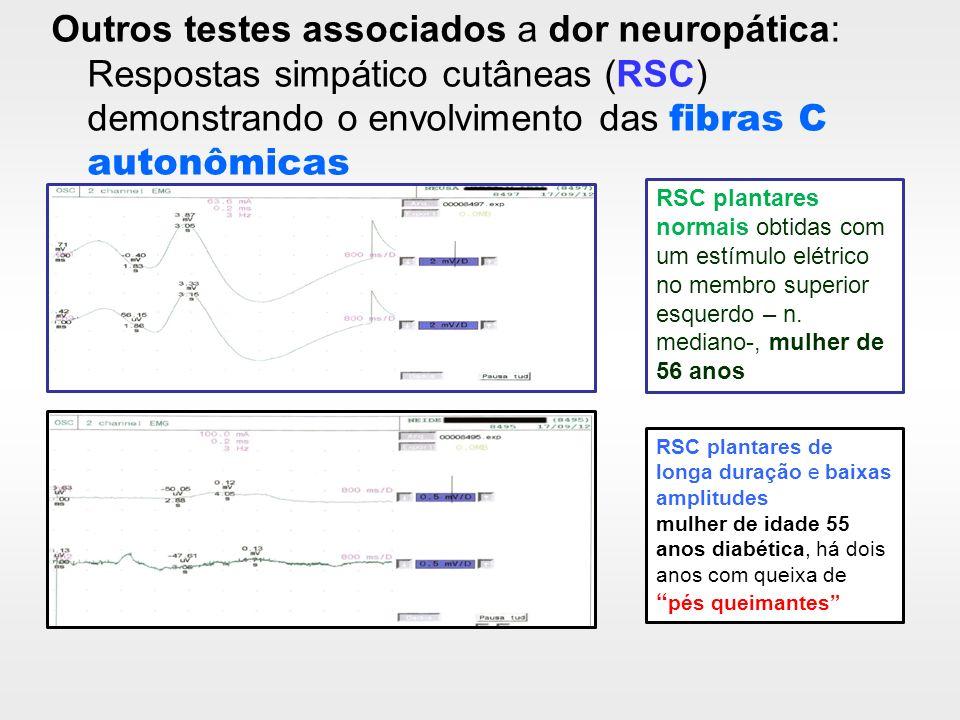 Outros testes associados a dor neuropática: Respostas simpático cutâneas (RSC) demonstrando o envolvimento das fibras C autonômicas RSC plantares norm