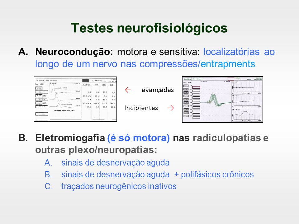 Testes neurofisiológicos A.Neurocondução: motora e sensitiva: localizatórias ao longo de um nervo nas compressões/entrapments B.Eletromiogafia (é só m