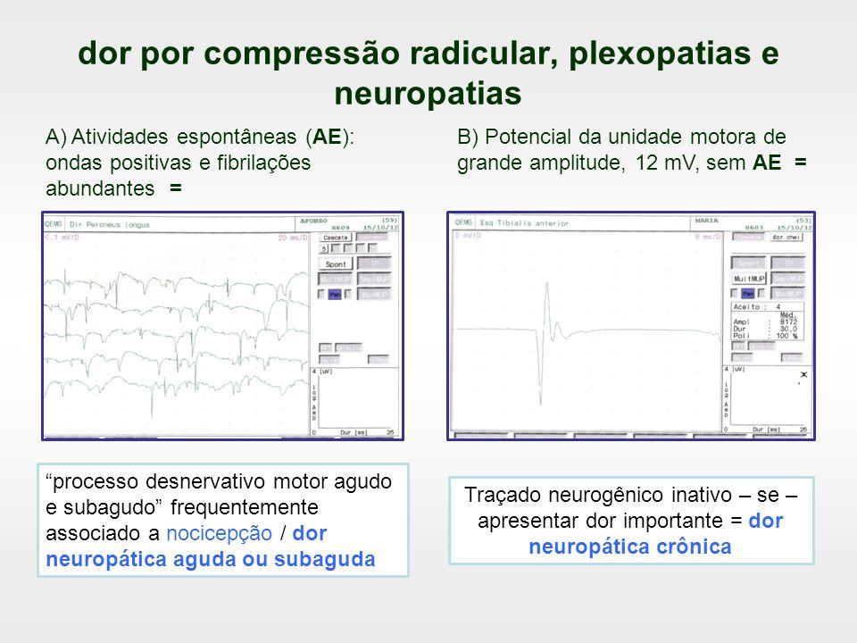dor por compressão radicular, plexopatias e neuropatias processo desnervativo motor agudo e subagudo frequentemente associado a nocicepção / dor neuro