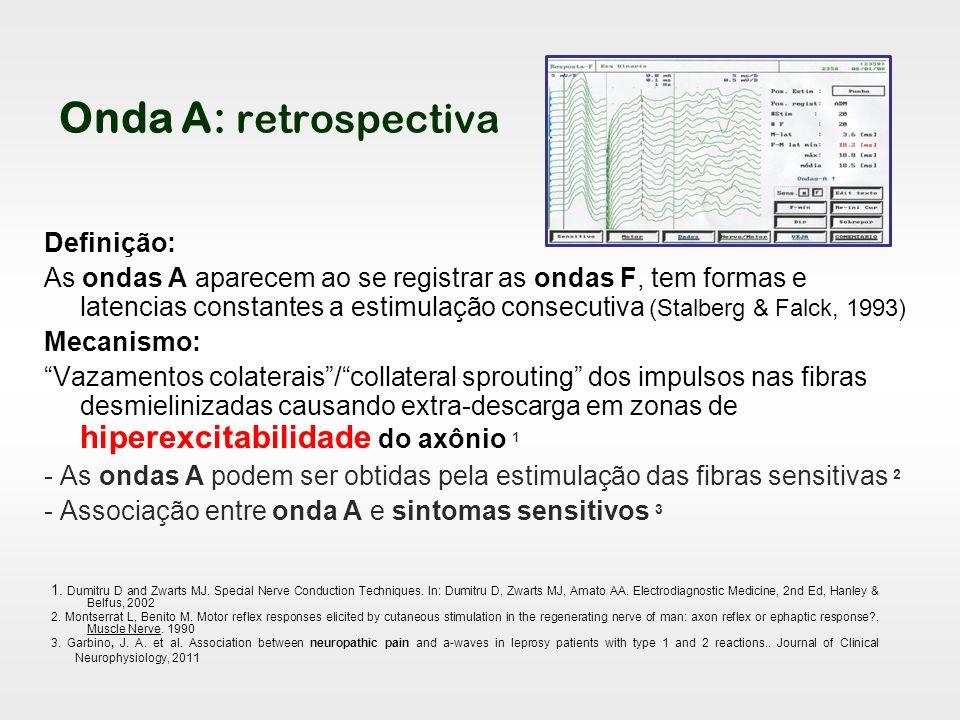 Onda A: retrospectiva Definição: As ondas A aparecem ao se registrar as ondas F, tem formas e latencias constantes a estimulação consecutiva (Stalberg