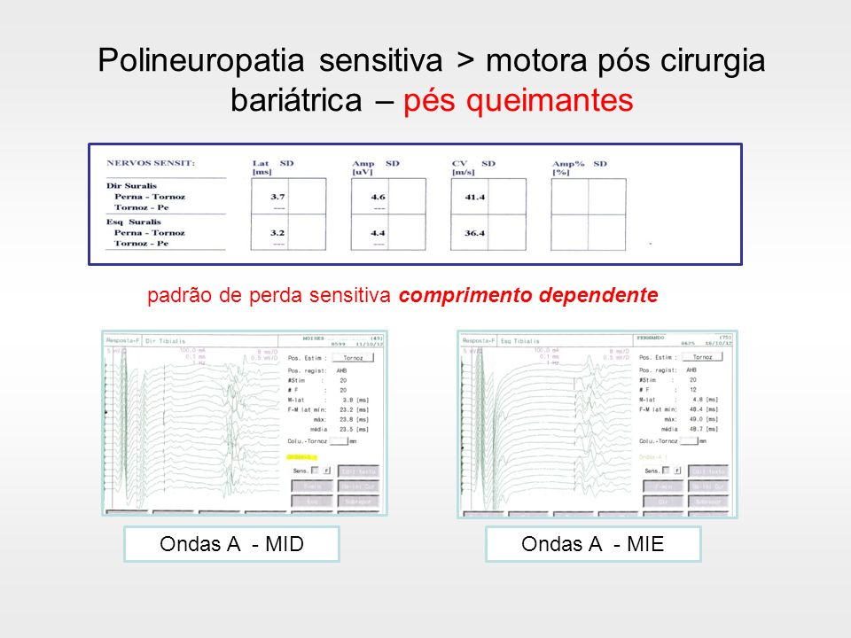 Polineuropatia sensitiva > motora pós cirurgia bariátrica – pés queimantes Ondas A - MIEOndas A - MID padrão de perda sensitiva comprimento dependente