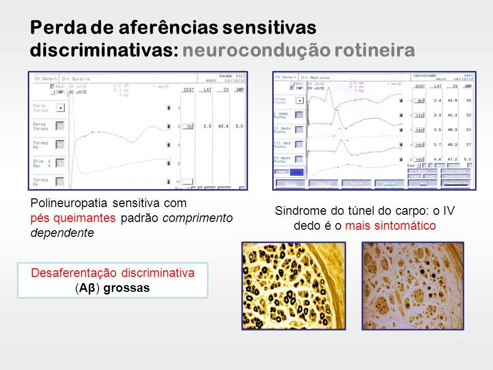 Perda de aferências sensitivas discriminativas: neurocondução rotineira Polineuropatia sensitiva com pés queimantes padrão comprimento dependente Sind