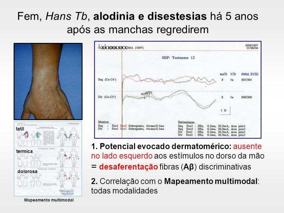 Fem, Hans Tb, alodinia e disestesias há 5 anos após as manchas regredirem 1. Potencial evocado dermatomérico: ausente no lado esquerdo aos estímulos n