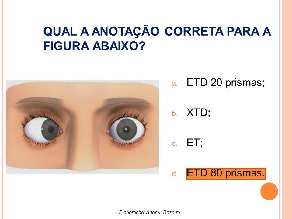 QUAL A ANOTAÇÃO CORRETA PARA A FIGURA ABAIXO.a. ETD 20 prismas; b.