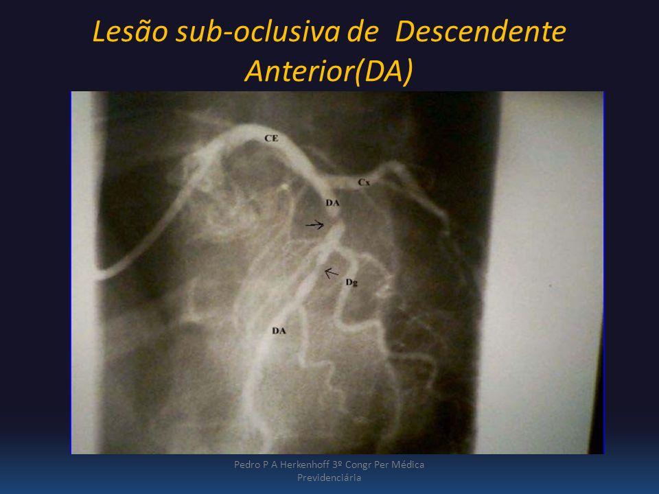 Lesão sub-oclusiva de Descendente Anterior(DA) Pedro P A Herkenhoff 3º Congr Per Médica Previdenciária Am J Cardiol. 1967; 20:457-464