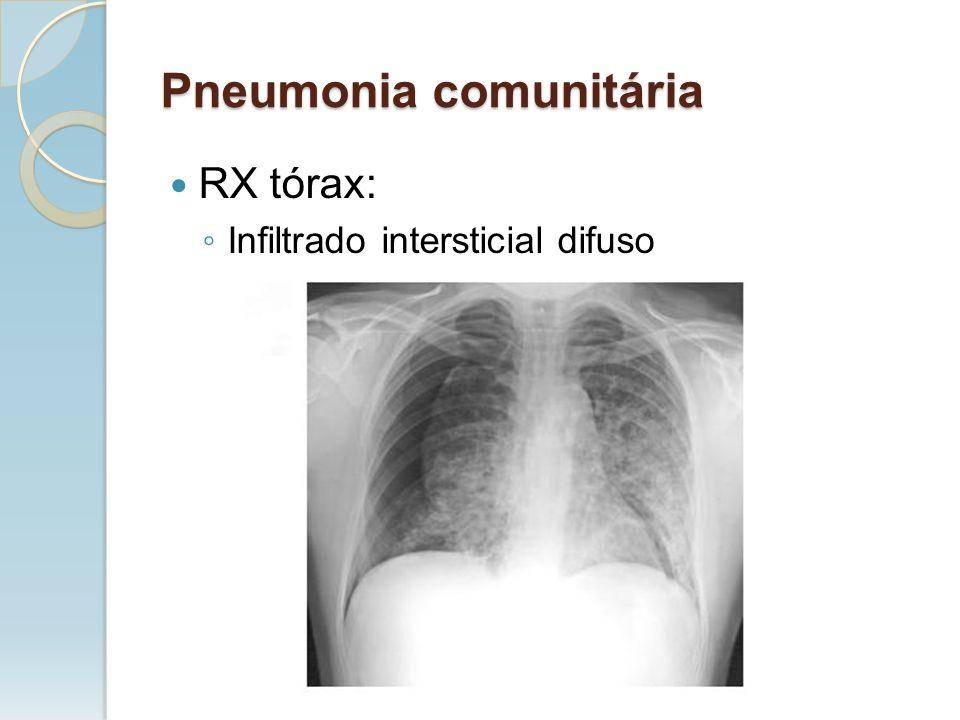 RX tórax: Infiltrado intersticial difuso Pneumonia comunitária