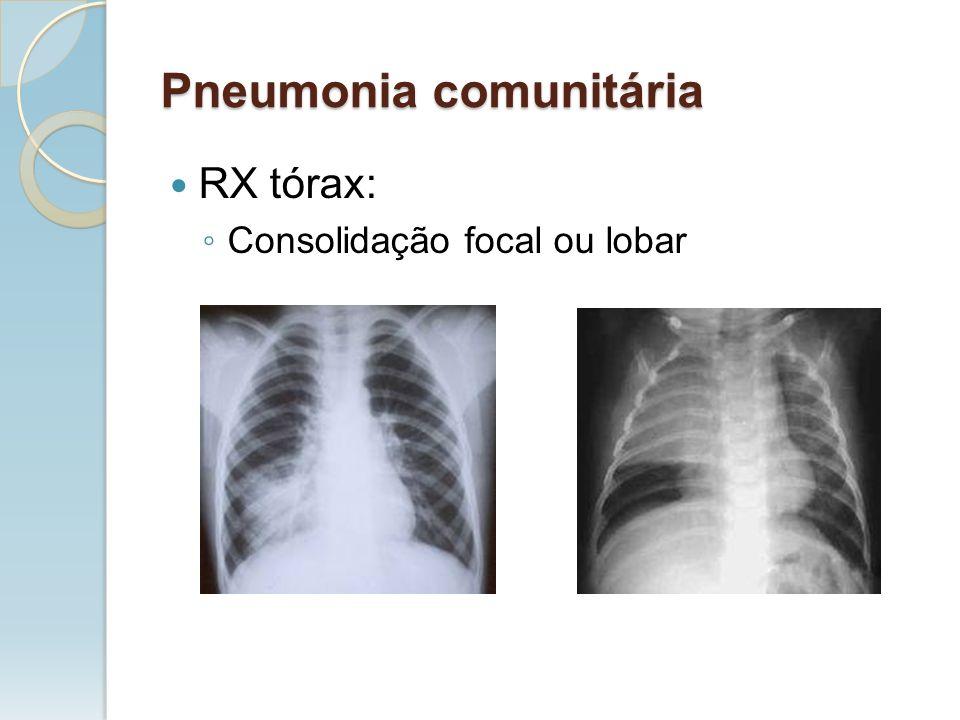 RX tórax: Consolidação focal ou lobar Pneumonia comunitária