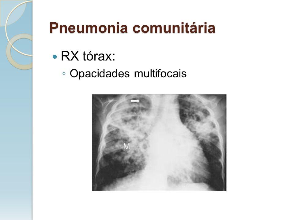 RX tórax: Opacidades multifocais Pneumonia comunitária