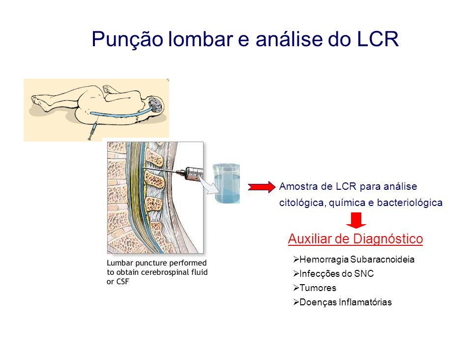 Punção lombar e análise do LCR Amostra de LCR para análise citológica, química e bacteriológica Auxiliar de Diagnóstico Hemorragia Subaracnoideia Infe