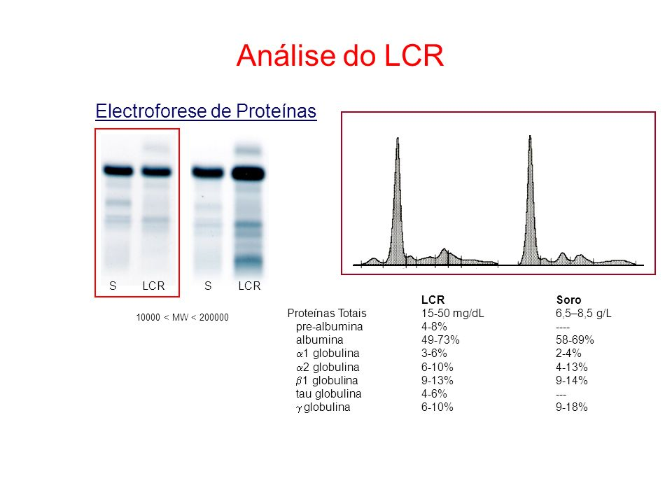 Análise do LCR Electroforese de Proteínas 10000 < MW < 200000 S LCR S LCRSoro Proteínas Totais15-50 mg/dL6,5–8,5 g/L pre-albumina4-8%---- albumina49-7