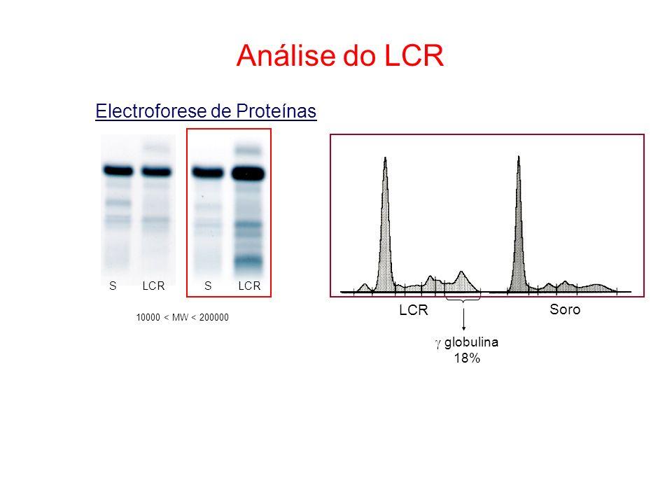 Análise do LCR Electroforese de Proteínas 10000 < MW < 200000 S LCR S Soro globulina 18%