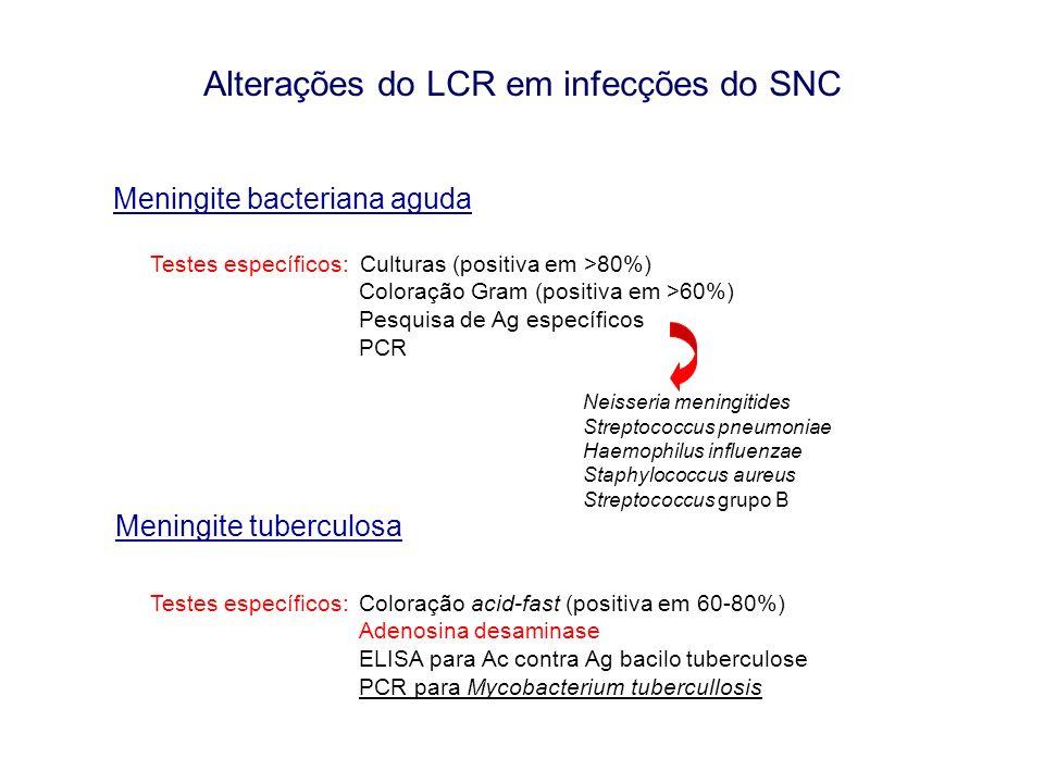 Alterações do LCR em infecções do SNC Meningite bacteriana aguda Testes específicos: Culturas (positiva em >80%) Coloração Gram (positiva em >60%) Pes