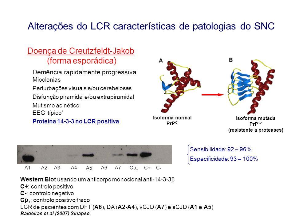 Alterações do LCR características de patologias do SNC Doença de Creutzfeldt-Jakob (forma esporádica) Demência rapidamente progressiva Mioclonias Pert