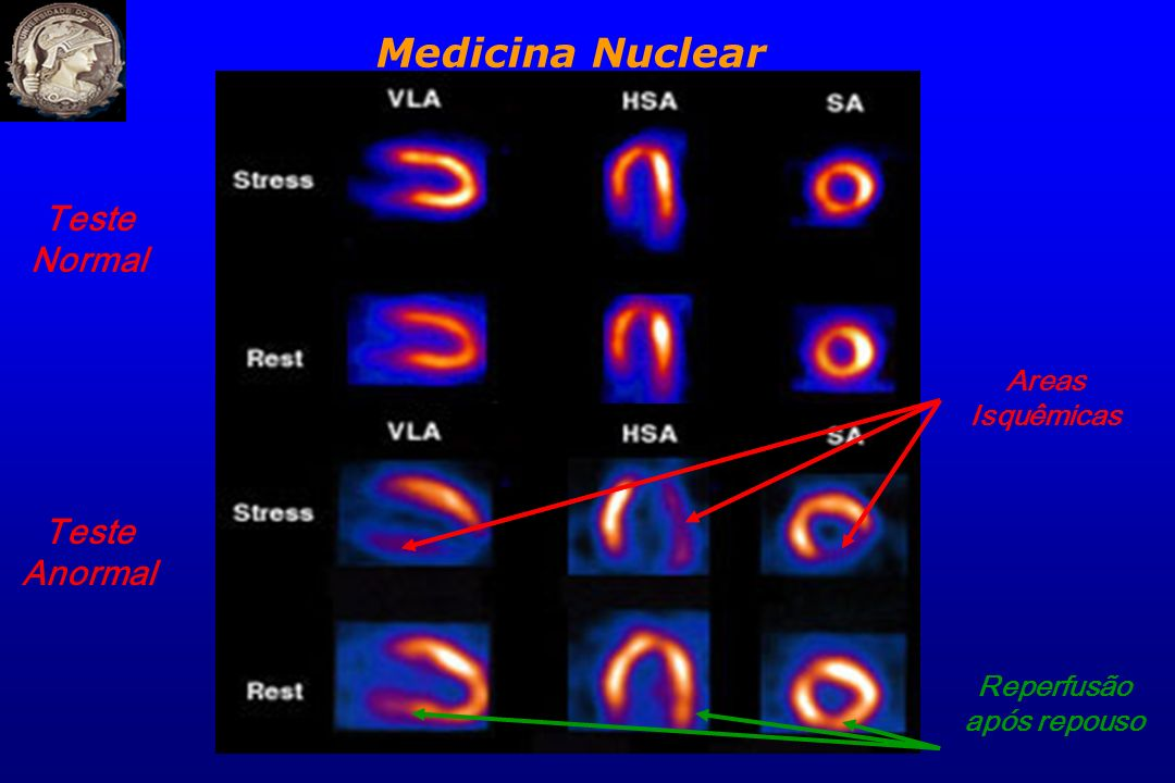 Teste Normal Teste Anormal Areas Isquêmicas Reperfusão após repouso Medicina Nuclear