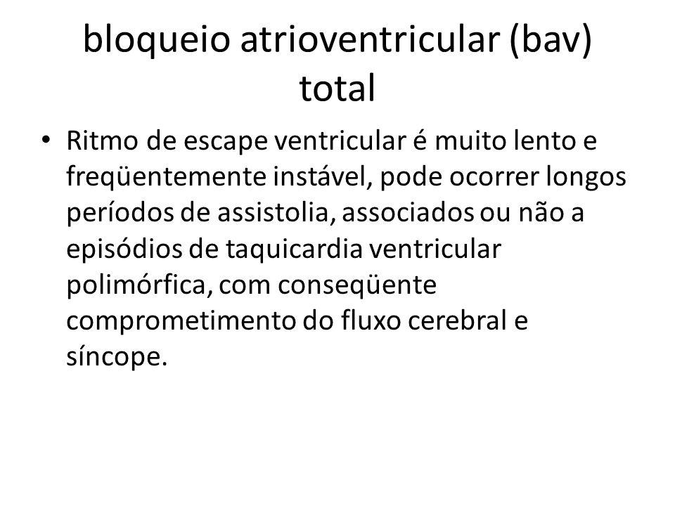 bloqueio atrioventricular (bav) total Ritmo de escape ventricular é muito lento e freqüentemente instável, pode ocorrer longos períodos de assistolia,