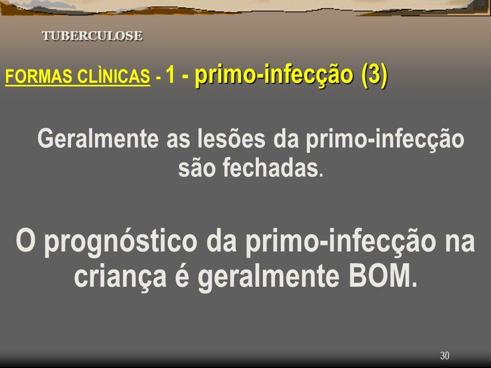 30 TUBERCULOSE primo-infecção (3) FORMAS CLÌNICAS - 1 - primo-infecção (3) Geralmente as lesões da primo-infecção são fechadas. O prognóstico da primo
