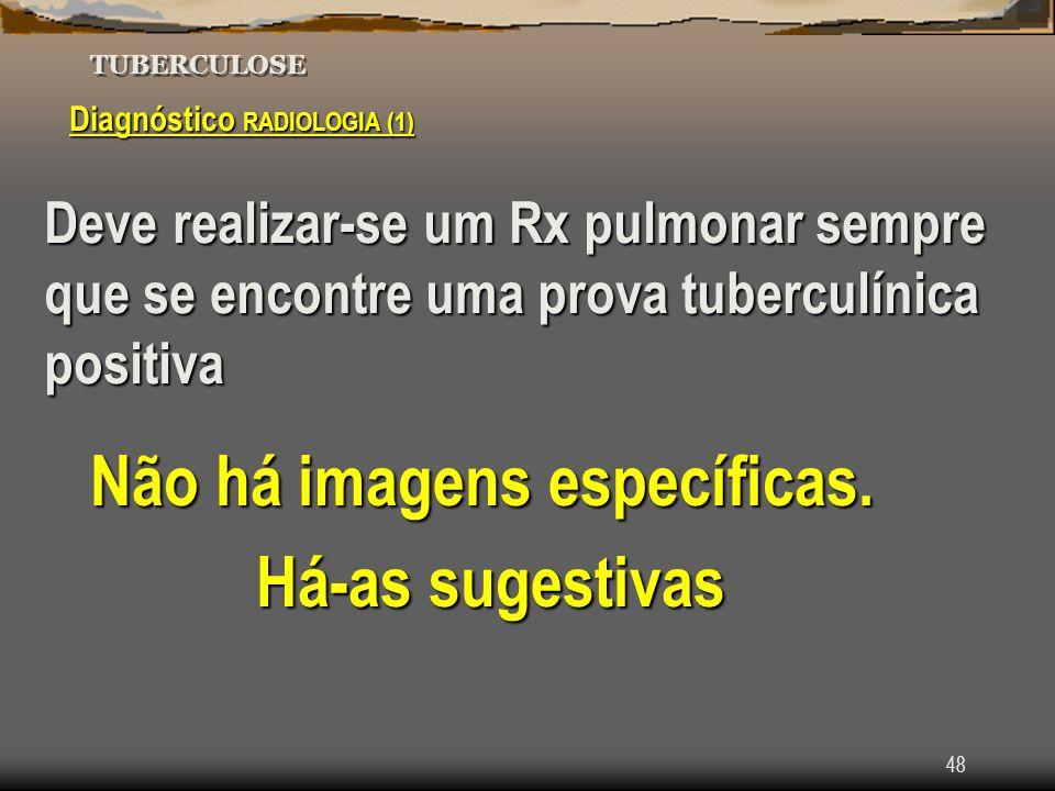 48 TUBERCULOSE Diagnóstico RADIOLOGIA (1) Deve realizar-se um Rx pulmonar sempre que se encontre uma prova tuberculínica positiva Não há imagens espec