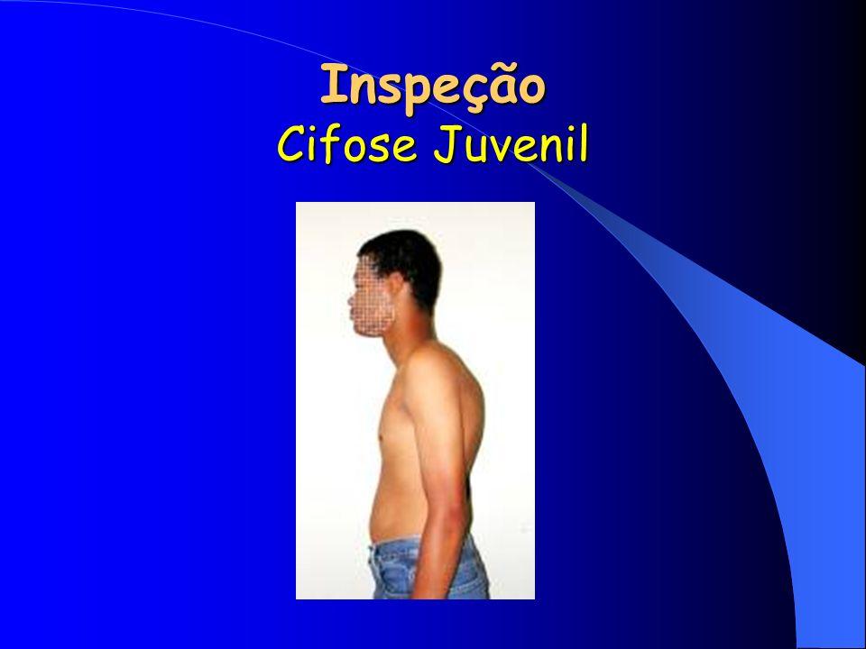 Inspeção Cifose Juvenil