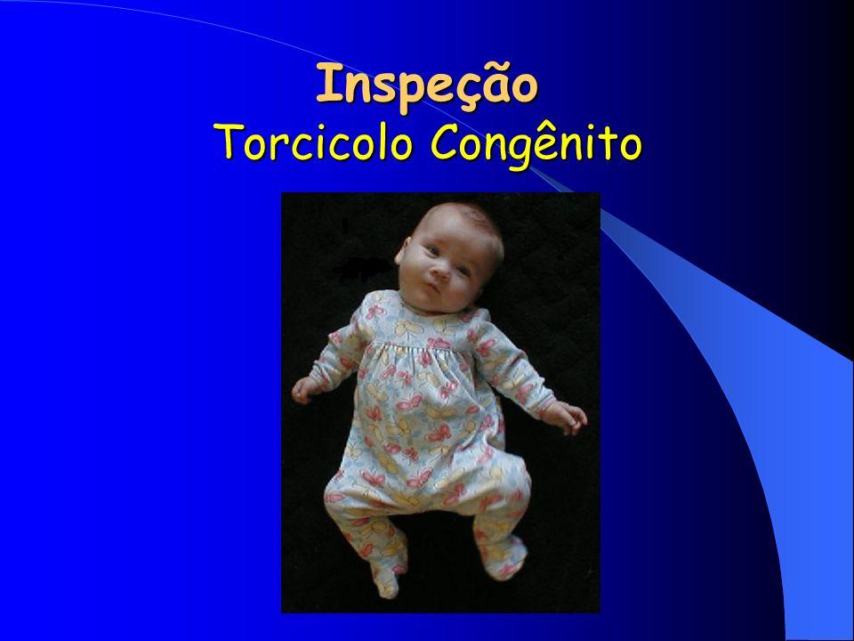Inspeção Torcicolo Congênito