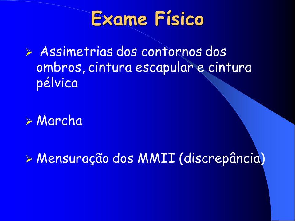 Exame Físico Assimetrias dos contornos dos ombros, cintura escapular e cintura pélvica Marcha Mensuração dos MMII (discrepância)