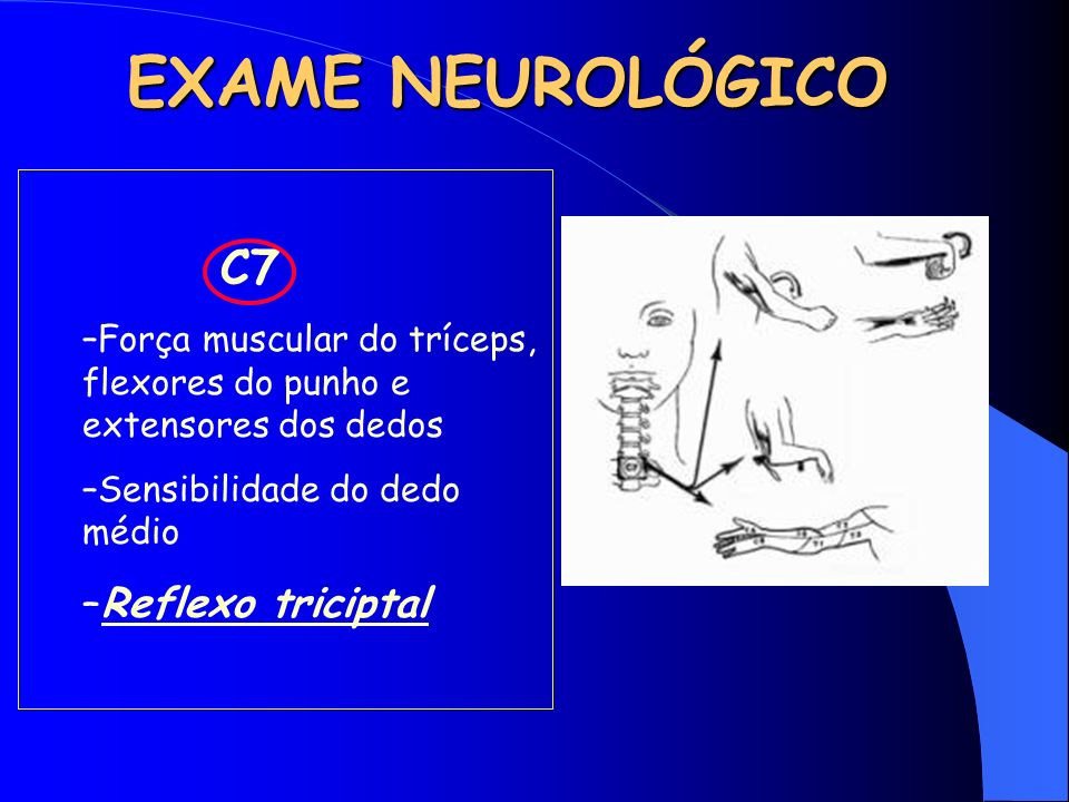 EXAME NEUROLÓGICO C7 –Força muscular do tríceps, flexores do punho e extensores dos dedos –Sensibilidade do dedo médio –Reflexo triciptal