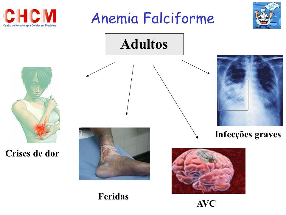 Anemia Falciforme Adultos Crises de dor AVC Infecções graves Feridas