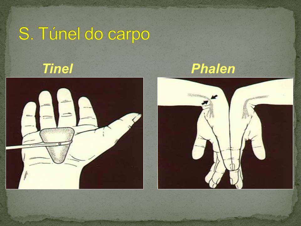 TinelPhalen