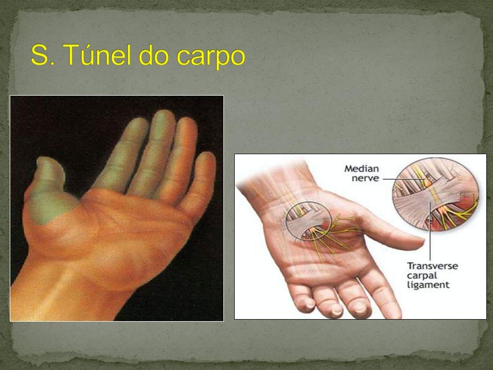 Conteúdo do túnel carpiano