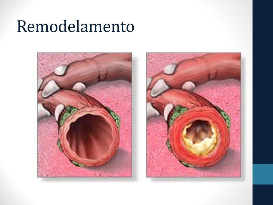 Bronquíolo normal Asma