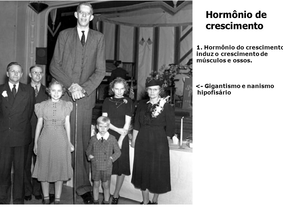 . Na infância – falta (nanismo) e excesso (gigantismo). No adulto – excesso (acromegalia) gigantismoAcromegalia: desenvolvimento dos dedos e mandíbula