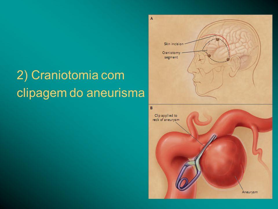2) Craniotomia com clipagem do aneurisma