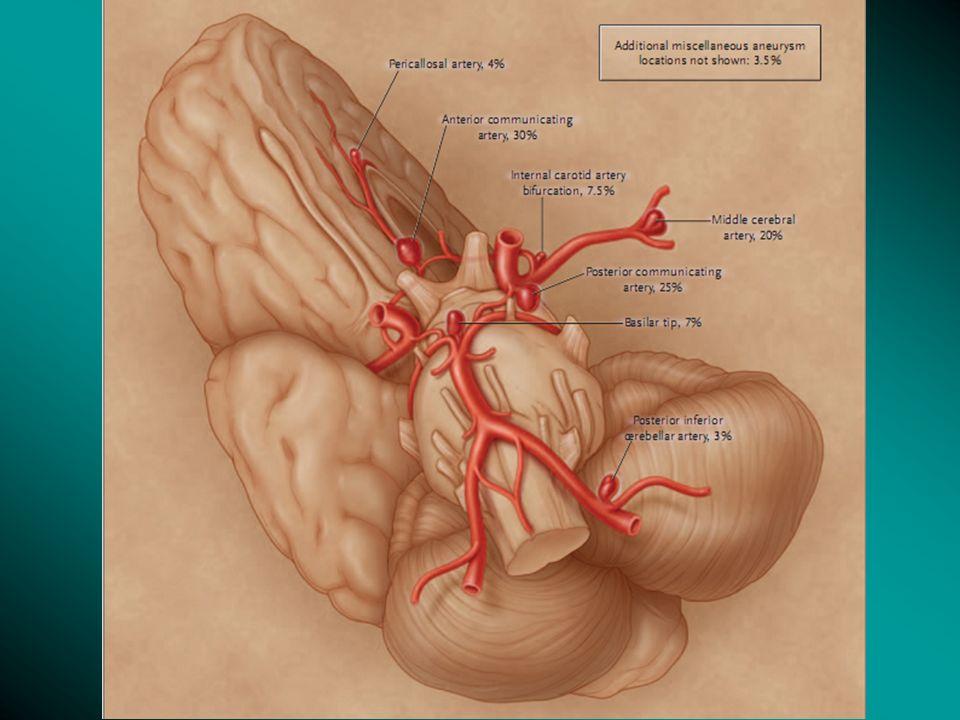 História Natural e Risco de Ruptura Apresentação mais comum do aneurisma intracraniano: ruptura levando à HSA; Aneurisma não-rotos podem ser assintomáticos e encontrados acidentalmente ou diagnosticados com base em sintomatologia, que, por efeito de massa, leva à compressão de NCs ou do tronco cerebral.