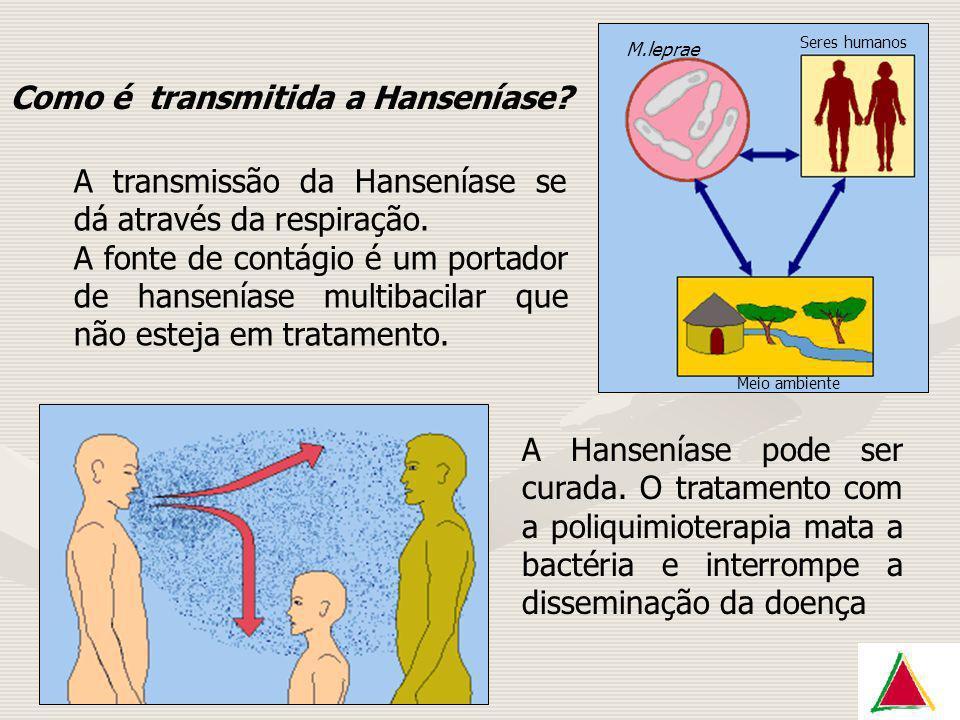 Como é transmitida a Hanseníase? A transmissão da Hanseníase se dá através da respiração. A fonte de contágio é um portador de hanseníase multibacilar