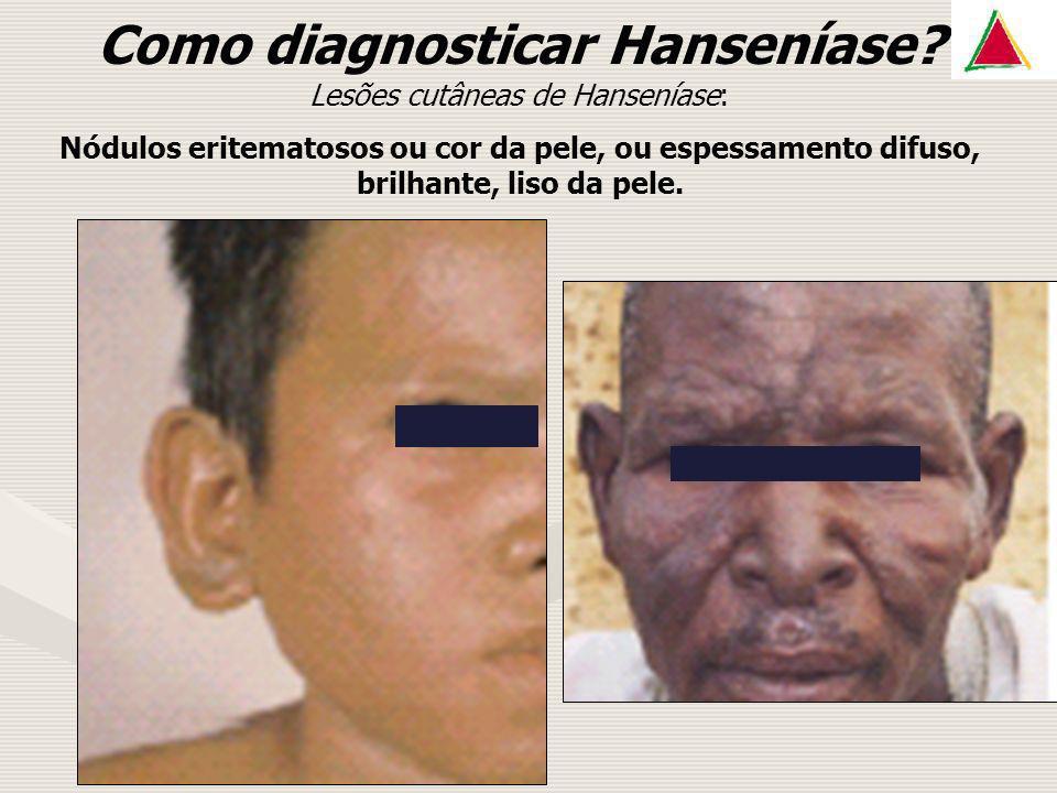 Como diagnosticar Hanseníase? Lesões cutâneas de Hanseníase: Nódulos eritematosos ou cor da pele, ou espessamento difuso, brilhante, liso da pele.
