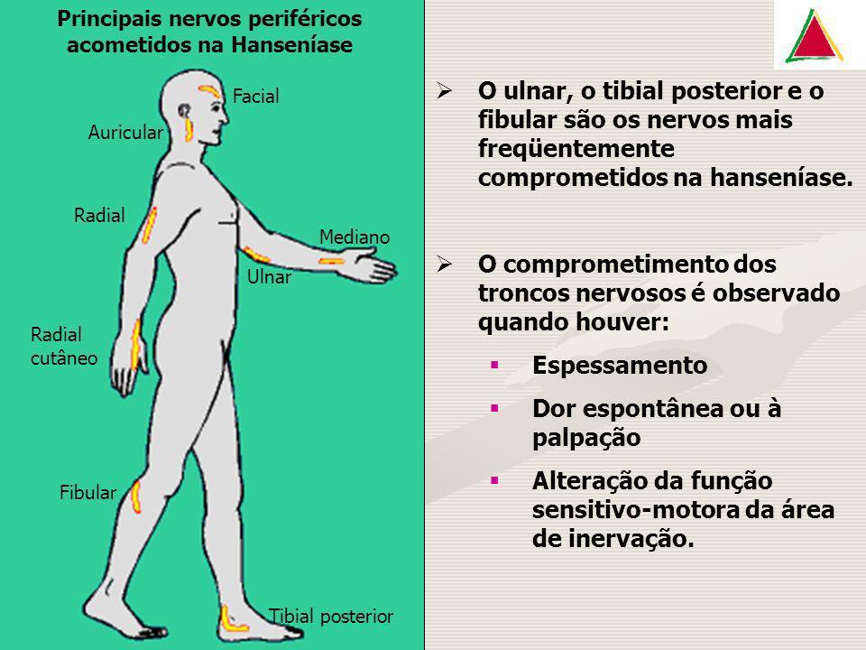 Tibial posterior Fibular Radial cutâneo Radial Mediano Ulnar Facial Auricular Principais nervos periféricos acometidos na Hanseníase O ulnar, o tibial